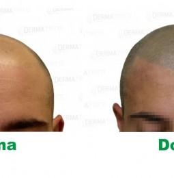 Perdi i capelli? Non sognarli … disegnali!